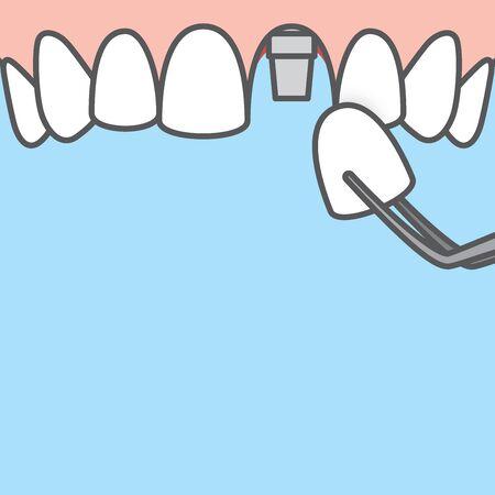 Blank banner Upper Single implant tooth illustration vector on blue background. Dental concept.