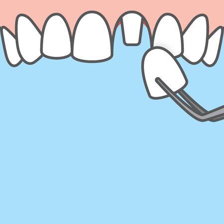 Blank banner Upper Single crown tooth illustration vector on blue background. Dental concept. Illustration