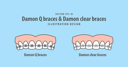 Damon Q braces & Damon clear braces (Upper) illustration vector on blue background. Dental concept.