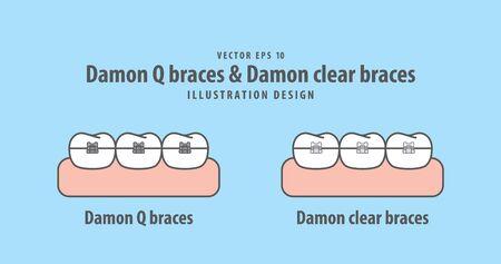 Damon Q braces & Damon clear braces illustration vector on blue background. Dental concept.