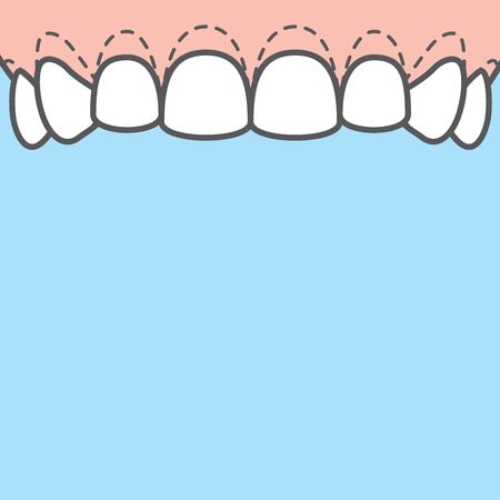 Blank banner Upper Gingivoplasty & Gingivectomy marking cut gum off illustration vector on blue background. Dental concept.