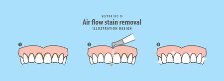 Air flow stain removal and teeth cleaning step (upper) illustration vector on blue background. Dental concept.