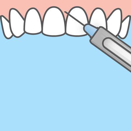 Blank banner Dental anesthesia,a syringe injecting to gums (upper) illustration vector design on blue background. Dental care concept. Vektorgrafik