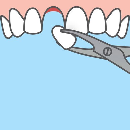 Blank banner Tooth extraction,tooth removal by forceps (upper) illustration vector design on blue background. Dental care concept.