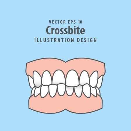 Dental crossbite teeth illustration vector design on blue background. Dental care concept.