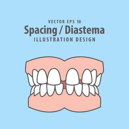 Dental spacing or diastema teeth illustration vector design on blue background. Dental care concept. Ilustracja