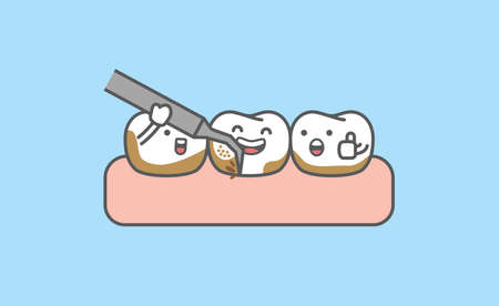 Dental cartoon of cleaning tooth by removing tartar from the teeth illustration cartoon character vector design on blue background. Dental care concept. 矢量图像