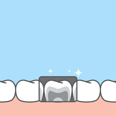 Blank banner lower x-ray healthy hygiene teeth illustration vector design on blue background. Dental care concept.