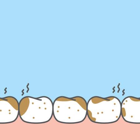 Blank banner lower dirty stain teeth illustration vector design on blue background. Dental care concept. 矢量图像