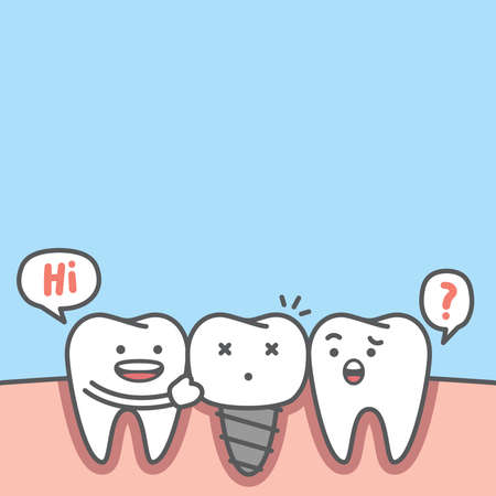 Blank banner dental cartoon of white teeth real root and implant screw metal root illustration cartoon character vector design on blue background. Dental care concept. 矢量图像