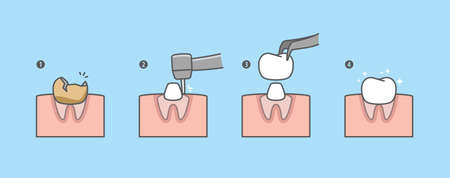 Step of real root tooth is restored by the crown tooth. illustration vector design on blue background. Dental care concept.
