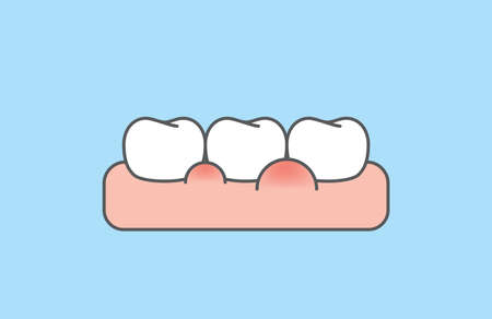 The white teeth with swollen gums disease illustration vector design on blue background. Dental care concept. 矢量图像