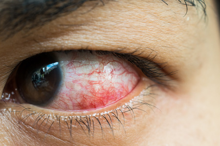 eye red: Close Up of irritated red blood eye.