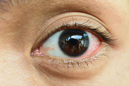 Close Up of irritated red blood eye.