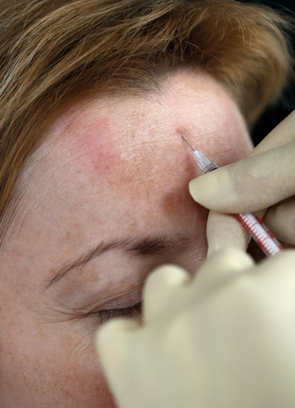 Botox injection in the forehead, close up photo