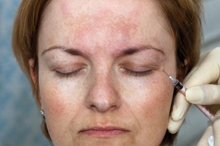 Inyección de Botox en la esquina del ojo, de cerca Foto de archivo - 11089363