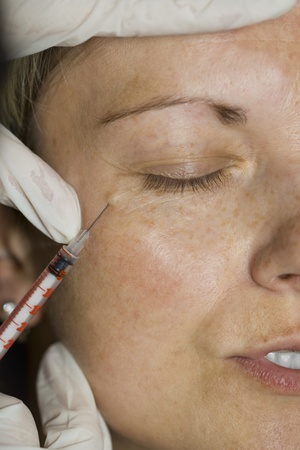 Botox injection in the eye corner, close up