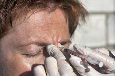 鼻の橋にボトックス注射をクローズ アップ 写真素材