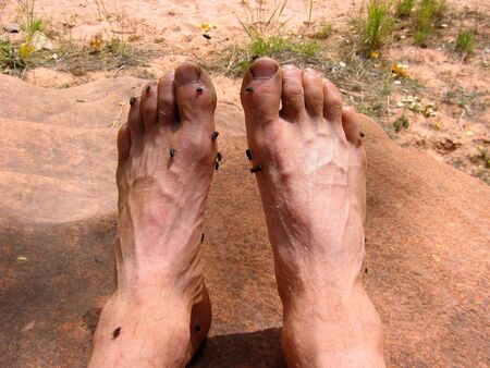 rancid: Feet so smelly that they attract flies Stock Photo