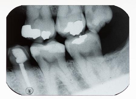 dentition: dental xray mostrando otturazioni e denti mancanti Archivio Fotografico