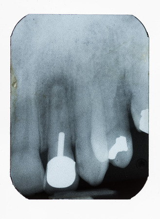 dental xray showing fillings implant and bone density loss photo