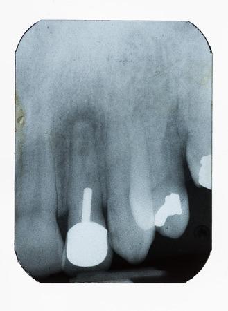 fillings: dental xray showing fillings implant and bone density loss