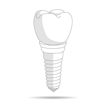 dental implant logo, icon. Implantation dentistry and care to teeth. illustration Zdjęcie Seryjne