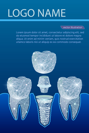 Healthy teeth and dental implant. Dentistry. Implantation of human teeth. Polygonal wireframe from dots and lines, abstract design. Digital graphics vector illustration. For Poster, Cover, Label, Sticker, Business Card Foto de archivo - 127712731