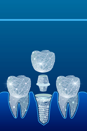 Healthy teeth and dental implant. Dentistry. Implantation of human teeth.  illustration