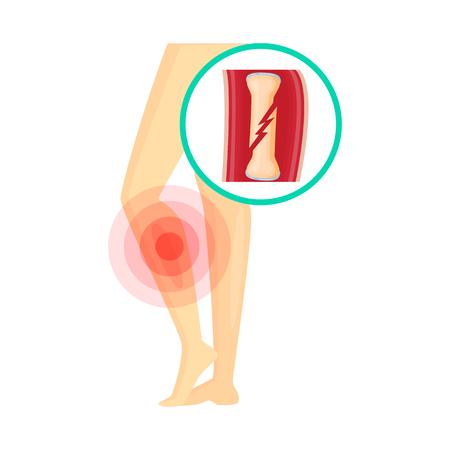 Ilustración de vector de icono de dolor y enfermedad. Colección de icono de vector de dolor y lesión para stock.