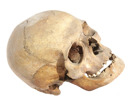 Old skull of a man who lived in the past century