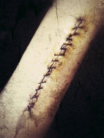 Stitches on arm