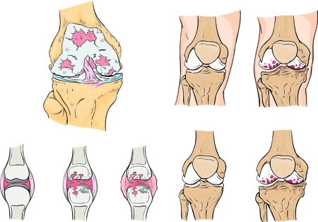 inflammatory: Illustration of the human knee