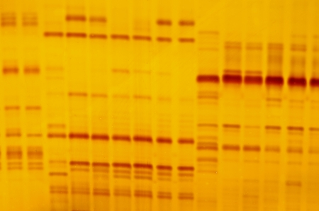 fingerprinting: DNA fingerprint with indicator marks and yellow background Stock Photo