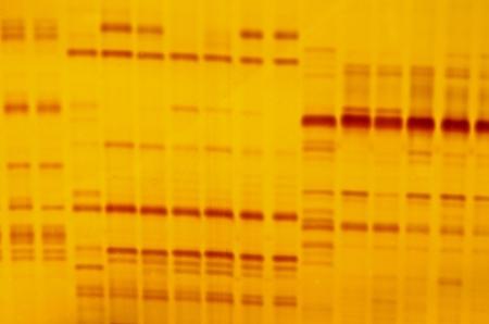 Empreintes génétiques avec des marques d'indicateurs et fond jaune Banque d'images - 22062788