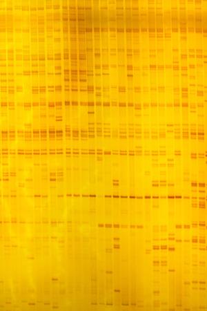 electrophoresis: Plant DNA fingerprint on acrylamine gel electrophoresis result