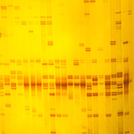 crecimiento planta: Planta de ADN huella digital en acrilamina resultado electroforesis en gel Foto de archivo