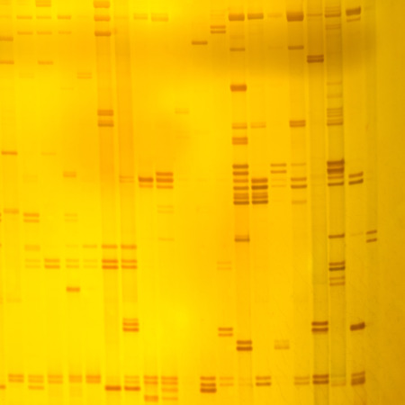 forensic medicine: Plant DNA fingerprint on acrylamine gel electrophoresis result