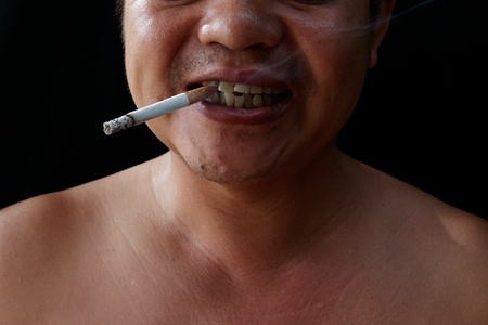 A man holding cigarette. Nicotine destroy teeth and gum healthy. it make effect Yellow stain, Tooth decay and Bad breath. world no tobacoo day. 版權商用圖片 - 126627853