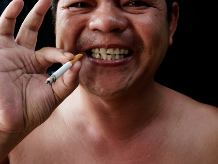 A man holding cigarette. Nicotine destroy teeth and gum healthy. it make effect Yellow stain, Tooth decay and Bad breath. world no tobacoo day.
