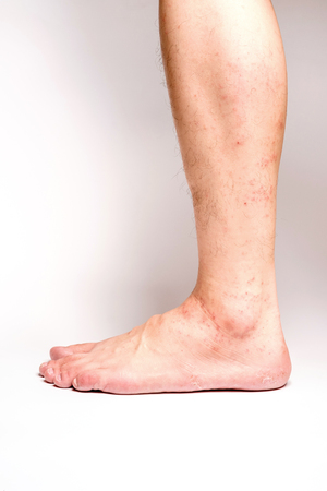 Allergic rash dermatitis eczema skin of patient legs on white background