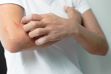 allergic: Sores from scratching allergy to arm women. Stock Photo
