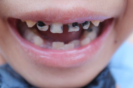 Little child with broken and rotten teeth   photo