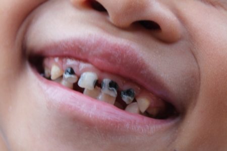 rotten: Little child with broken and rotten teeth   Stock Photo