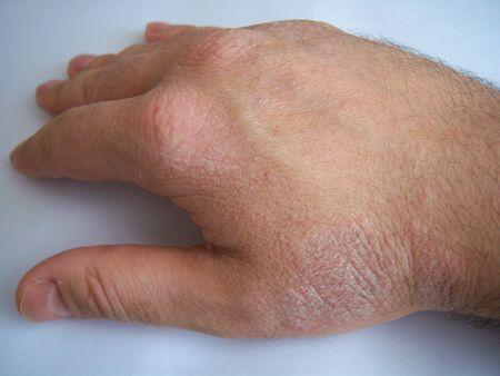 rash: Psoriasis en la mano