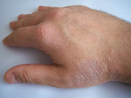 the lesions: psoriasis on the hand