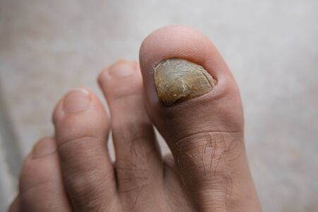 Young Man barefoot fingers with onycho mycosis nails sick,dermatologic issues,medical Stock Photo