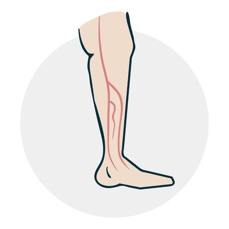 Leg with varicose veins.