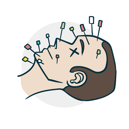 Acupuncture procedure on the face comics style. Illustration