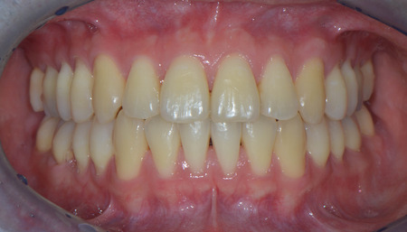 orthodontist: Intraoral photo